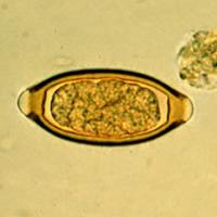 Peitschenwurm Ei